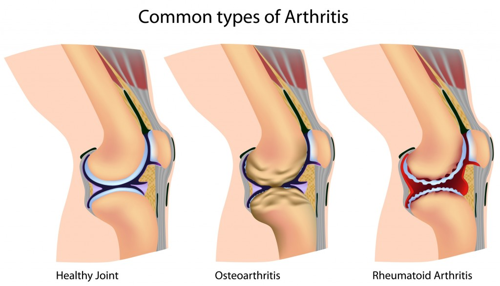Diagrams of Arthritic Knees