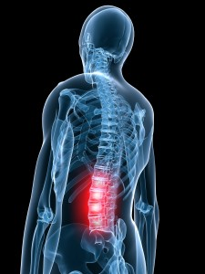 image of a skeleton with the low back highlighted in red indicating pain